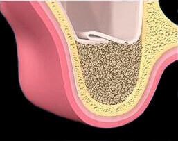Закрытие мембраны и наложение швов